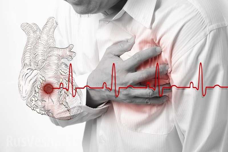 Аневризма грудного отдела аорты: диагностика и лечение