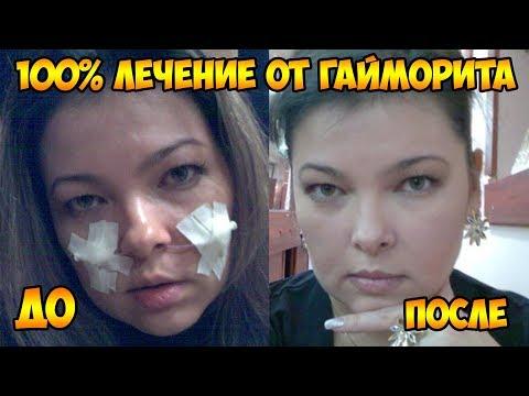 Капли в нос диоксидин