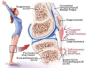 Тендинит. механизм воспаления, симптомы, диагностика повреждения и лечение