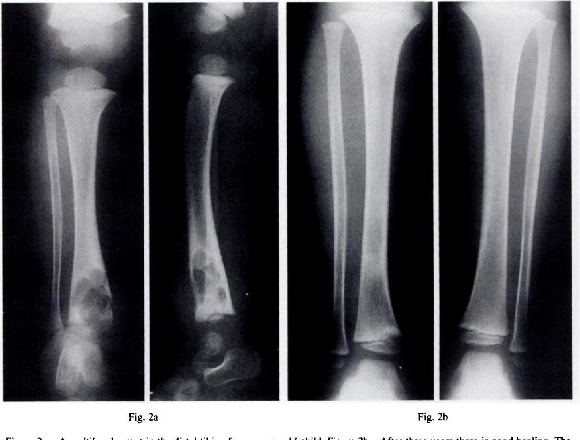 Туберкулез костей: симптомы, первые признаки