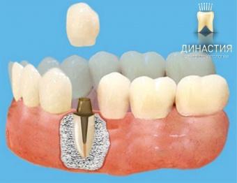 Восстановление коронковой части зуба — эстетический внешний вид зубного ряда, обзор цен