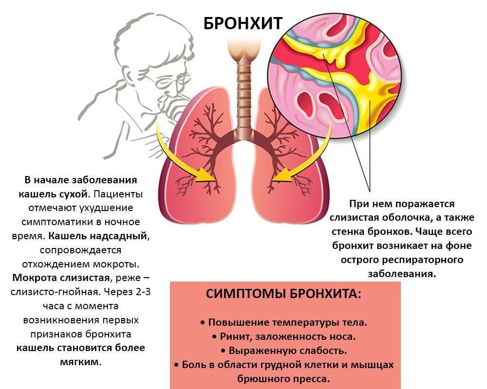 Как отличить бронхит от пневмонии у детей и взрослых в домашних условиях