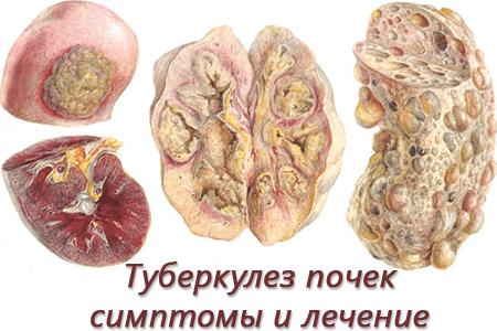 Лечение туберкулеза почек - медицинский портал eurolab