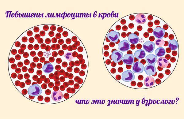 Что такое лейкоцитарная формула и как проводится ее расшифровка