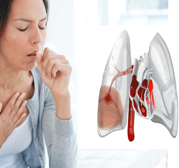 Сердечный кашель: что делать
