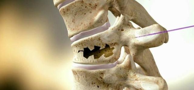 Асептический спондилит шейного отдела позвоночника