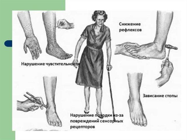 Симптомы и лечение диабетической полинейропатии
