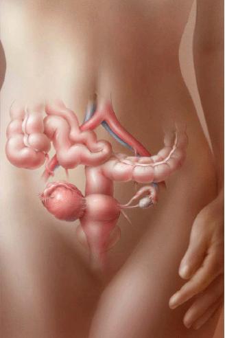 Виды кист яичников: классификация, фото