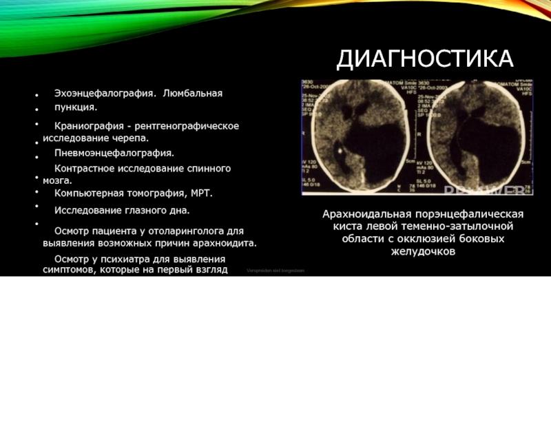 Виды арахноидальных кист головного мозга: способы диагностики и лечения