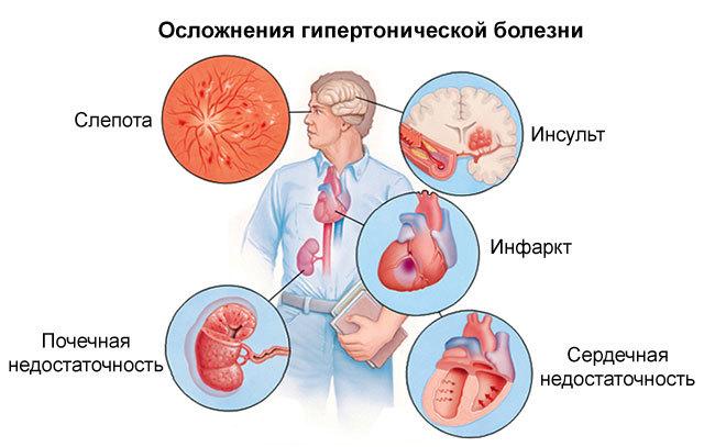 Пропафенон: инструкция по применению, аналоги, отзывы врачей