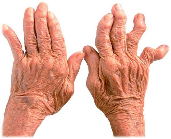 Артрит пальцев рук: симптомы, лечение и профилактика