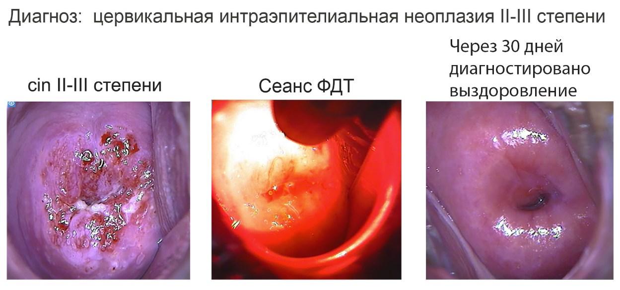 Дисплазия шейки матки - что это: лечение и степени заболевания