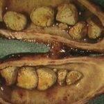Что делать при обострении холецистита: что принимать?