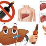 Что такое цирроз печени: виды заболевания, первые признаки и лечение