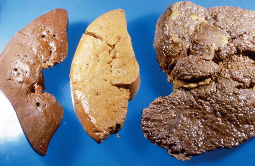 Опухоль печени диеты