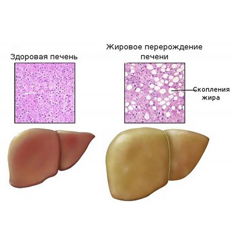 Диета При Жировой Дистрофия Печени. Диета при жировом гепатозе печени