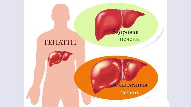 Гепатит.при долггом и упорном соблюдении диет,вирус из организма уйдет,возможно