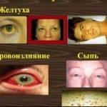 Как передается лептоспироз: симптомы и лечение заболевания у человека