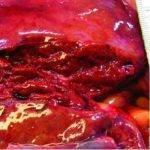 Симптомы и последствия разрыва печени