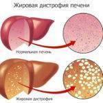 Жировая инфильтрация печени и поджелудочной железы: что это такое?