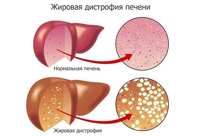 Жировая Инфильтрация Печени Лечение И Диета. Стол №5 при жировом гепатозе печени. Что разрешено включать в рацион