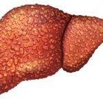 Цирроз печени стадии развития