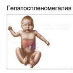 Гепатомегалия у новорожденных: причины и лечение увеличенной печени