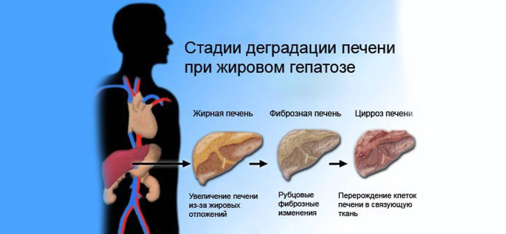 Диета при жировой инфильтрации печени и поджелудочной