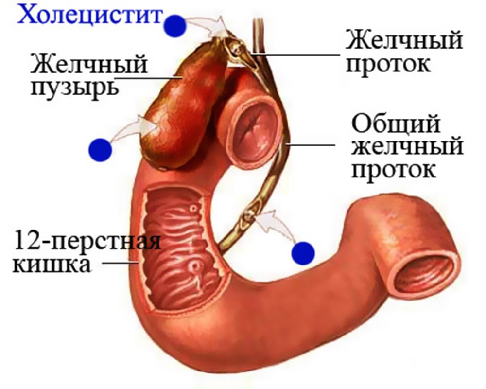 Холецистит: симптомы, диагностика, классификация и как лечить воспаление желчного пузыря