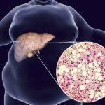 Поражение печени при сахарном диабете