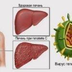 Какой из гепатитов самый опасный?