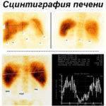 Что такое сцинтиграфия печени, что показывает анализ?