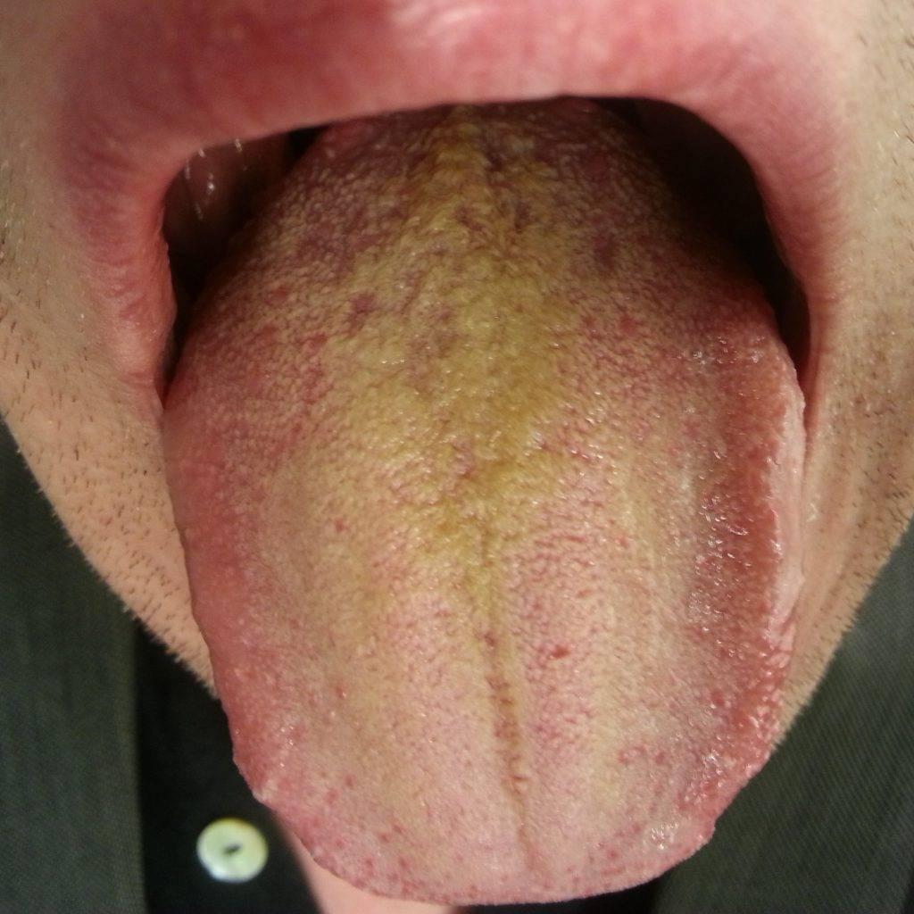 Налет на языке желтого цвета причины лечение