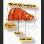 Как можно заразиться гепатитом С?