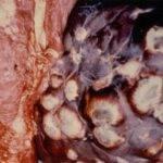 Эхинококкоз: что это такое у человека, симптомы и лечение