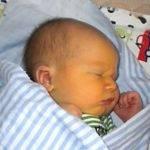 Что такое конъюгационная желтуха у новорожденного?