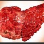 Может ли быть температура при гепатите C и циррозе?