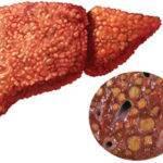 Гепатит E: что это такое и как передается болезнь?