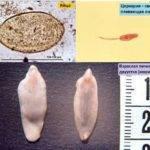 Печеночные глисты у человека: симптомы заражения