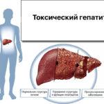 Что такое гепатит: симптомы и лечение заболевания в разной форме