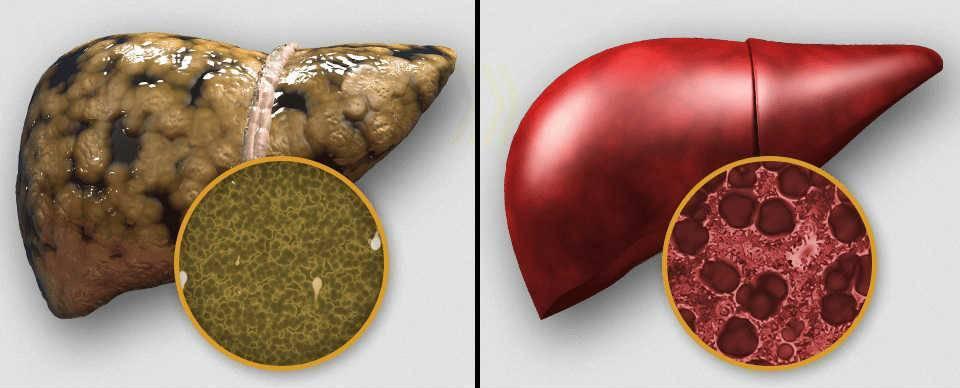 Влияние простатита на печень простатит или аденома простаты чем лечить