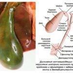 Лечение хронического холестатического гепатита