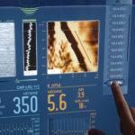 Фиброскопия печени: что это такое, подготовка и расшифровка