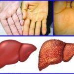 Хронический гепатит не уточненной этиологии: что это такое?