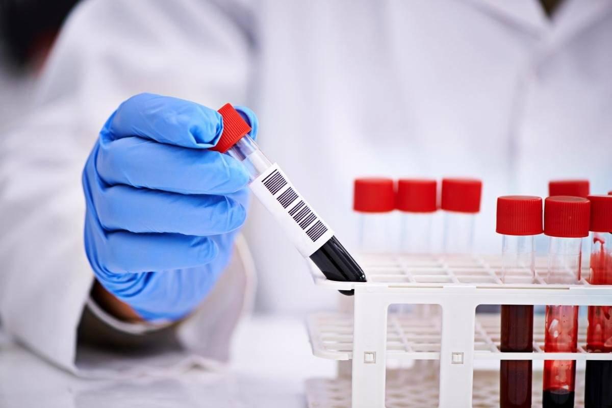 На тощак сдавать анализ на гепатит thumbnail