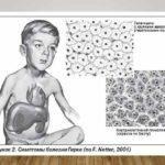 Что такое гликогеноз: симптомы и влияние на печень