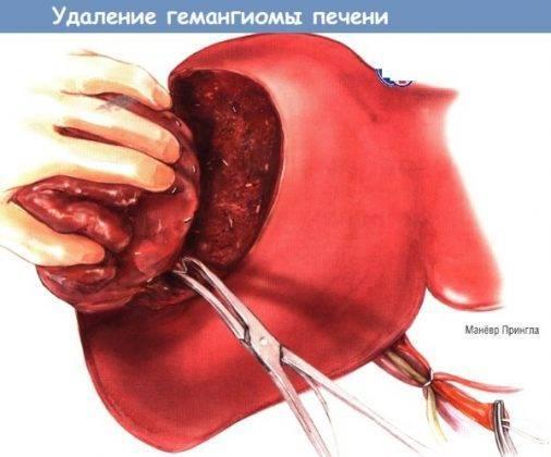 Симптомы и лечение ангиомы печени