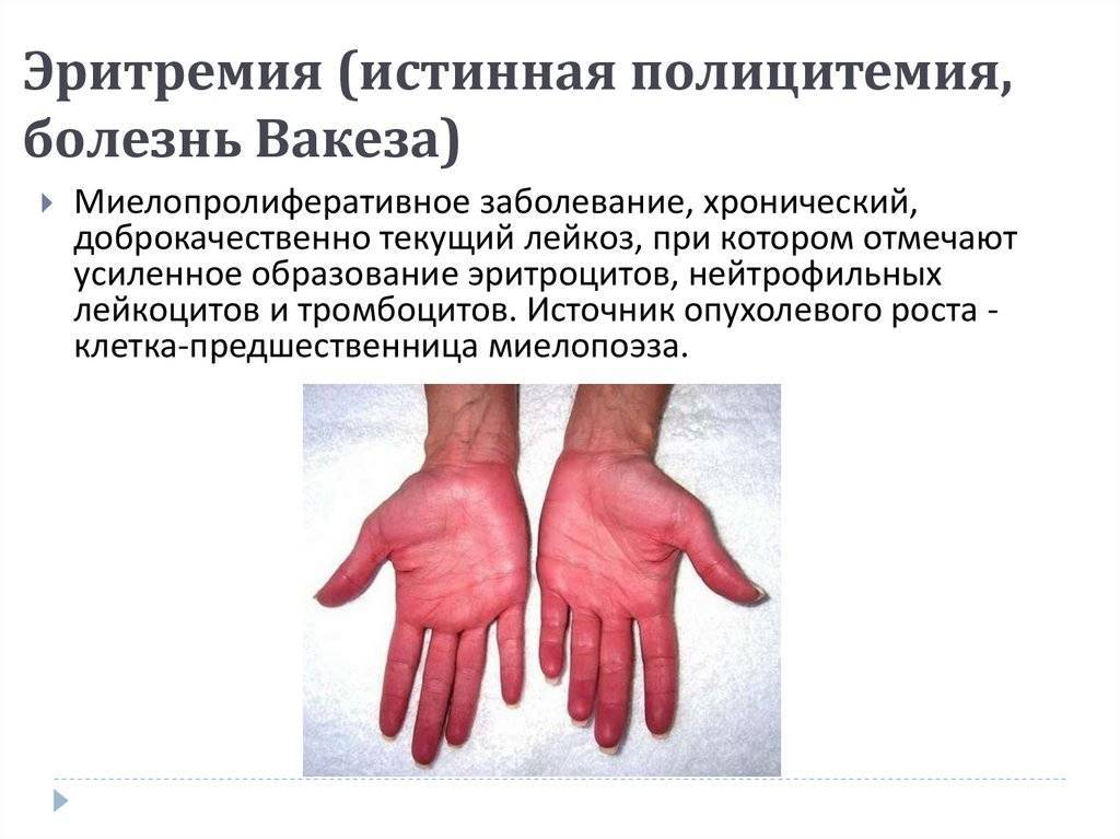Кокарнит: инструкция по применению уколов