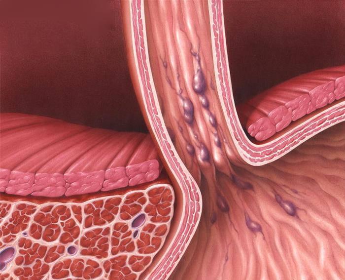 Причины геморрагии при циррозе печени: анемия и внутреннее кровотечение