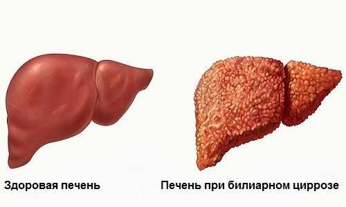 Видно ли на УЗИ цирроз печени?